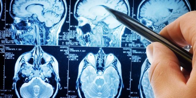 hjernedoed